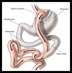 Bariatric Surgery 1